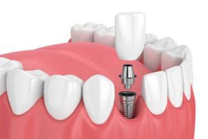 Diagram of the dental implant procedure available at River Run Family Dentistry