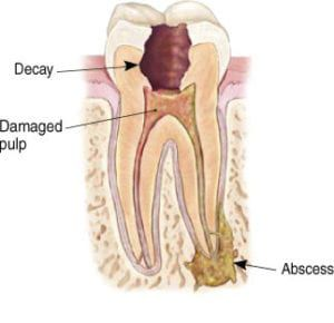 Diagram of a root canal from River Run Family Dentistry
