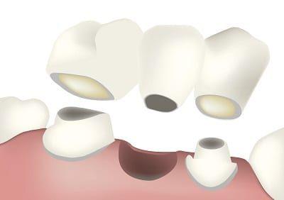Diagram of a dental bridge from River Run Family Dentistry