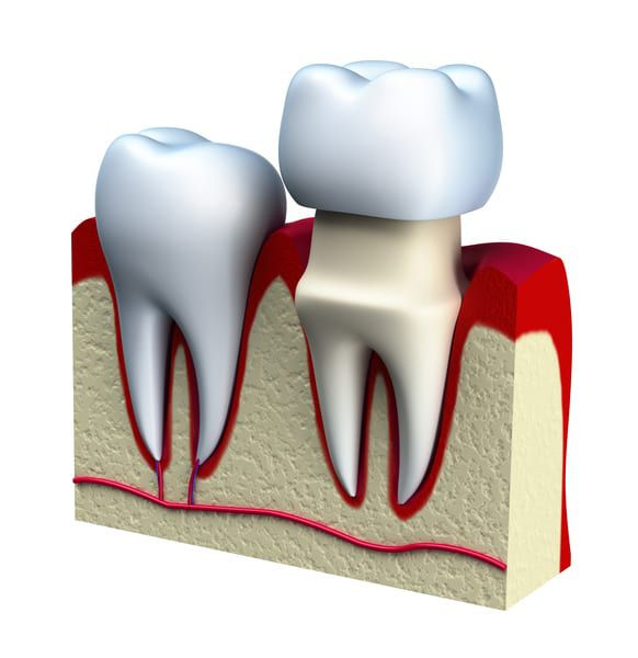 Diagram of the dental crown from River Run Family Dentistry