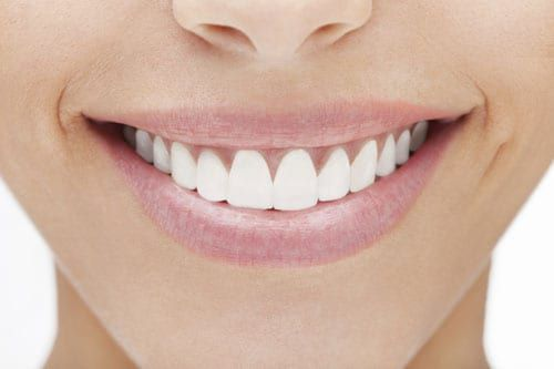 Patient with teeth veneers from River Run Family Dentistry